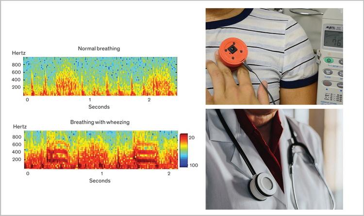 Smart Medtech